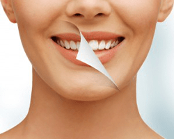 חומרי הלבנה - Whitening